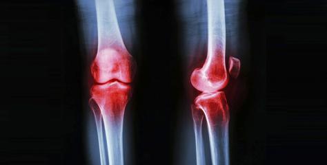 Les symptômes de l'arthrose par Arthrosynov